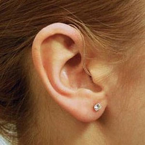 Hearing Aids Suppliers